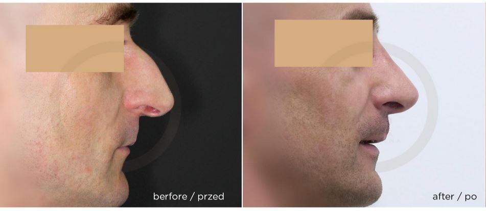 korekta nosa mężczyzna białystok