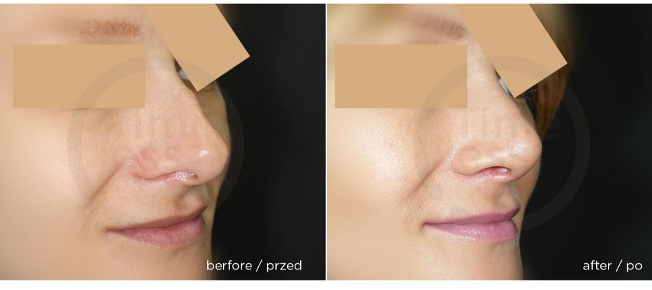 korekta nosa kobieta białystok